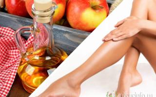 Применение яблочного уксуса при варикозе: эффективные способы