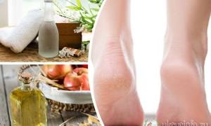 Глицерин и уксус для нежных пяток: эффективные рецепты