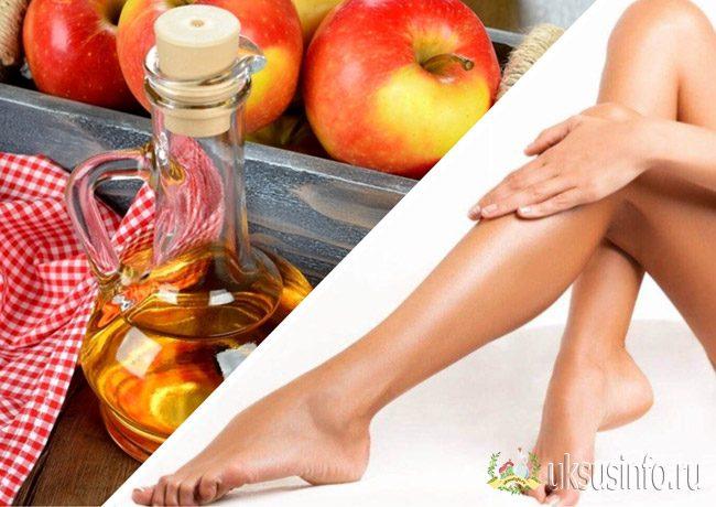 Лечение варикоза яблочным уксусом рецепты и отзывы