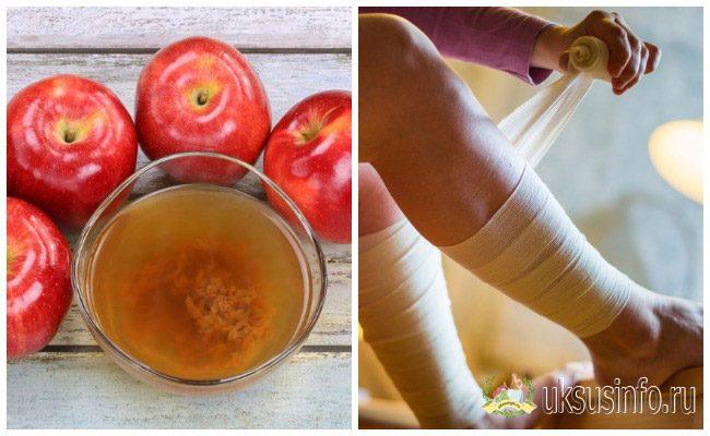 Яблочный уксус при варикозе отзывы рецепты и использование в лечении